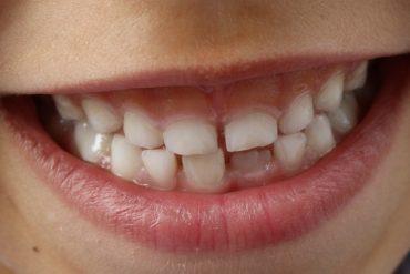 Mycie zębów u dzieci – porady